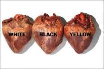 razzismo cuore